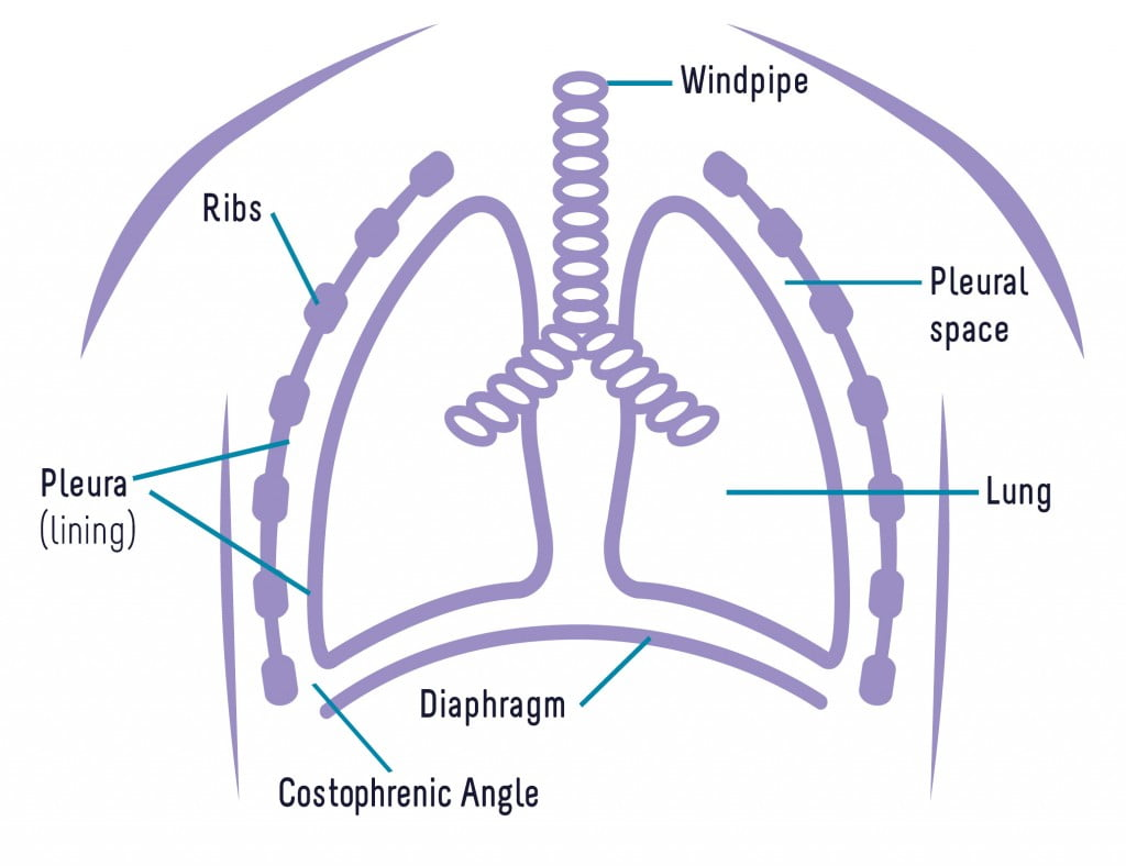 Lung diagram pleural thickening 1 1024788 national asbestos go back pooptronica Image collections